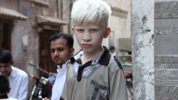 Projeto de Lei 694/2020 | Assegura direitos básicos às pessoas  portadoras de albinismo